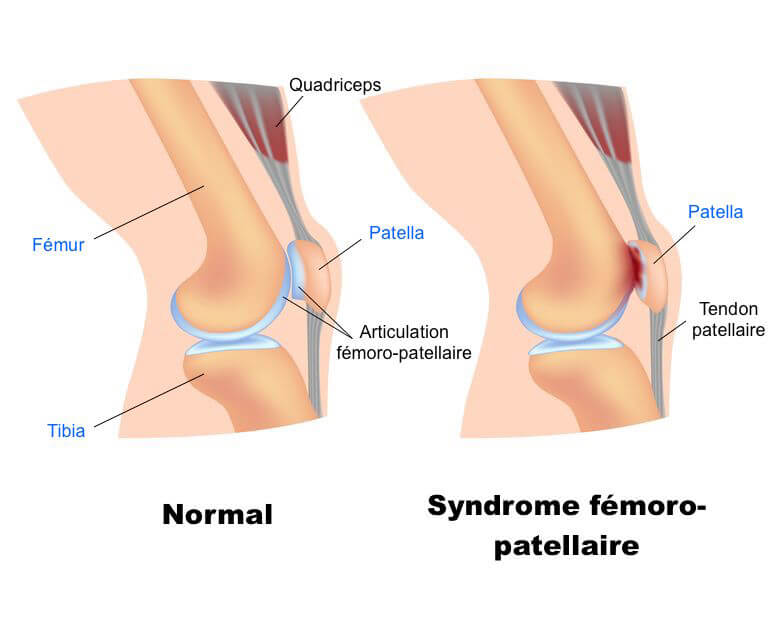 syndrome fémoro patellaire