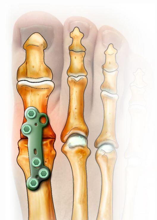 arthrodese plaque