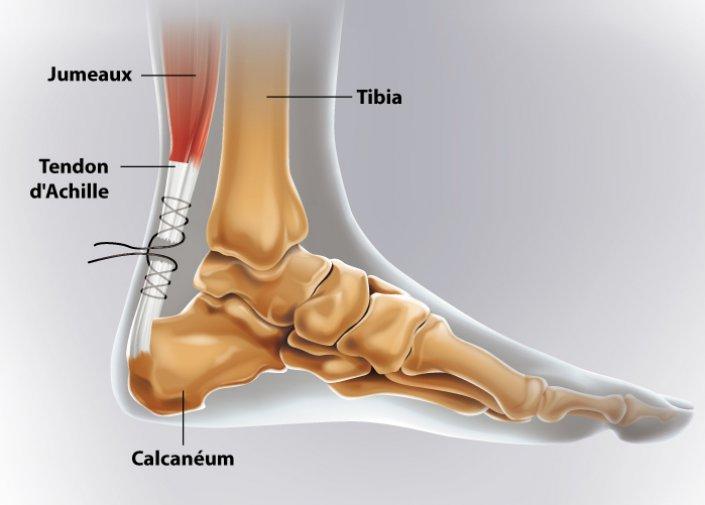 réparation tendon d'Achille